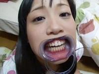 開口器をつけられた少女がフェラ→苦しみの口内射精